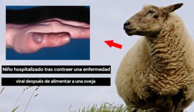 Niño Alimenta Ovejas y Contrae Enfermedad Viral 'Con Similitudes a la COVID-19'